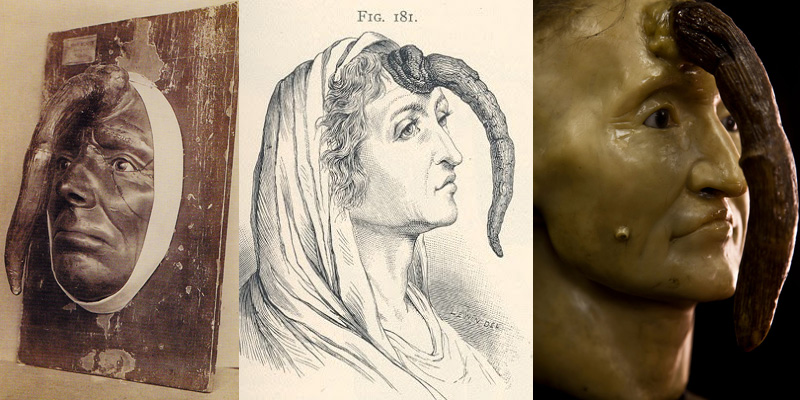Madame Dimanche et sa corne cutanée