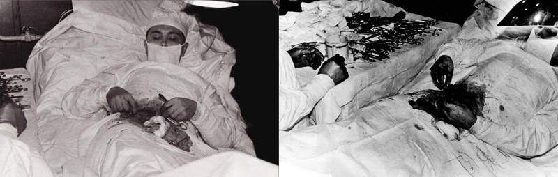 auto-appendicectomie du docteur russe Leonid Rogozov