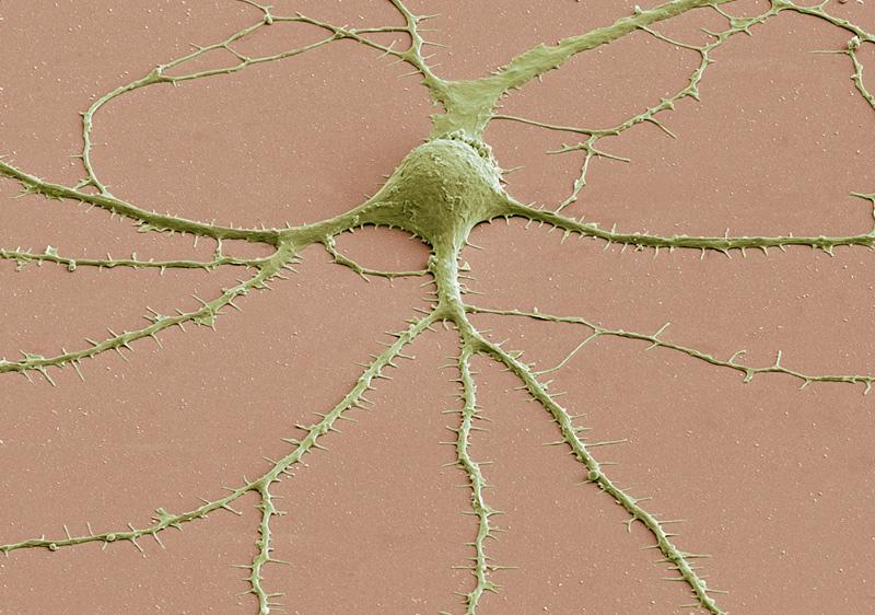cellule de cerveau vue au microscope